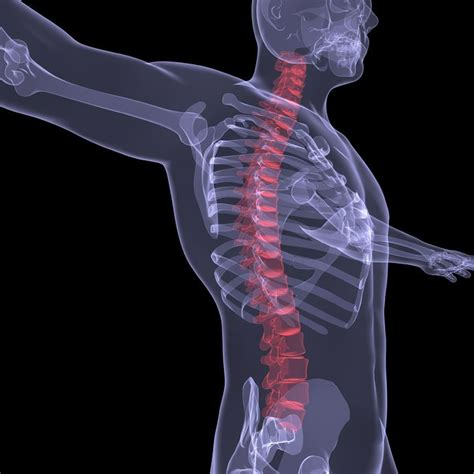 fracture universe books spinal fractures center causes symptoms treatment