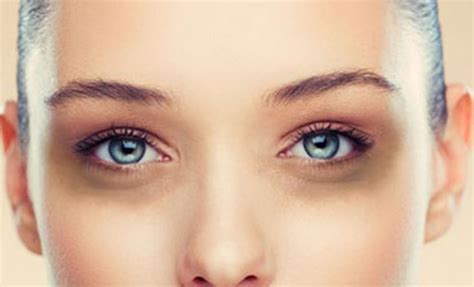 4 Things That Cause Your Eye Circles And Puffiness by How To Get Rid Of Circles Fast Permanently Treat