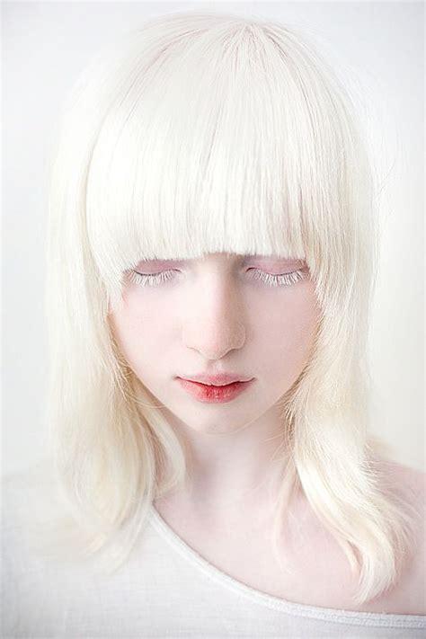 albino hair feel albino model albinism and eyelashes on pinterest
