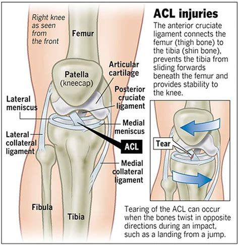 cruciate ligament tear a patient s guide to anterior cruciate ligament injuries orthopaedic clinic singapore