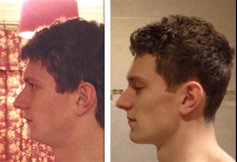 i have a weak chin what is a good hair cut for me what s more turnoff that a weak chin weak jaw
