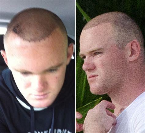 declan donnelly hair transplant has dec had hair transplant wayne rooney hides his new