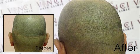 how to conceal hair transplant scar scalp micropigmentation for hair transplant scar repair