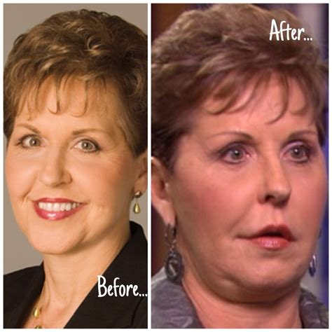 joyce meyer s face the plastic surgery reports