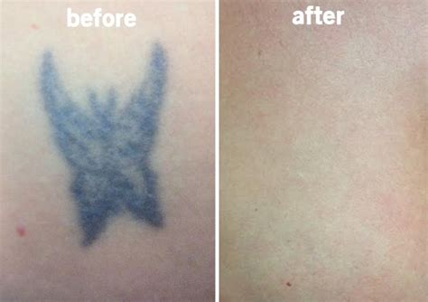 tattoo removal winnipeg removal specialist in winnipeg manitoba minuk