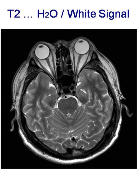 Alat Kesehatan Mri radiologi alat kesehatan diagnostic ultrasound bussines