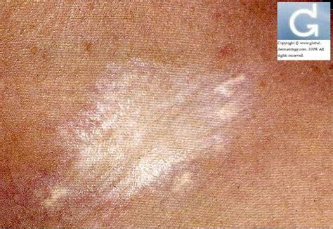 scl 233 rodermie localis 233 e morphee sclerodermie