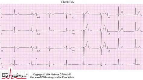 ecg tutorial online video ecg interpretation tutorial chalktalk 145 advanced