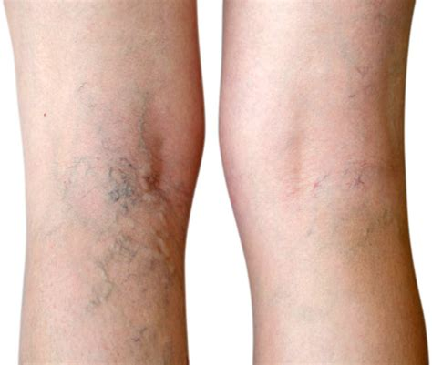 tattoo removal dayton ohio varicose vein treatment healthdarts