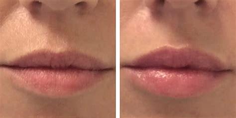 natuurlijke en botox lippen botox en fillers kliniek