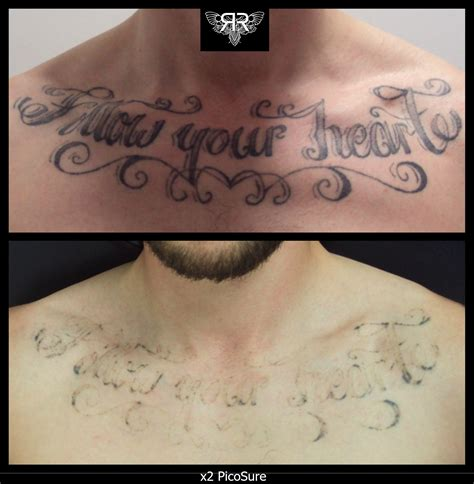 picosure tattoo removal cost x2 picosure sessions getting there work