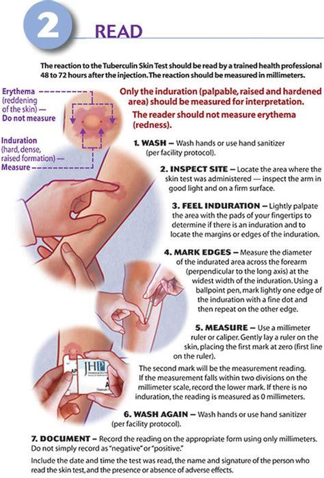 skin test nurseupdate mantoux test for tuberculosis its