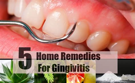 gingivitis cure related keywords gingivitis cure