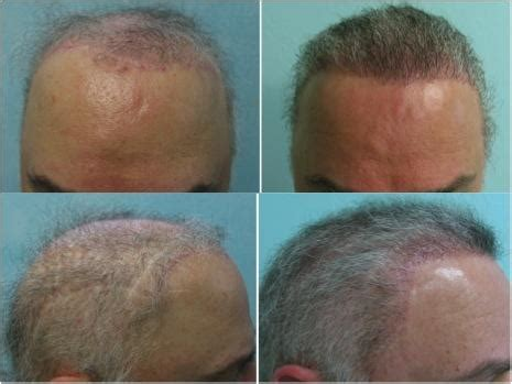 dr yates fue cost per graft los angeles hair transplant cost