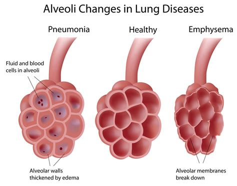 anatomy of a child s lung pediatric pulmonologists alveoli in lung diseases pediatric pulmonologists