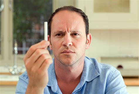 young male pattern baldness 10 signs showing you probably smoke too much