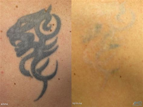 tattoo removal maryland laser removal baltimore maryland