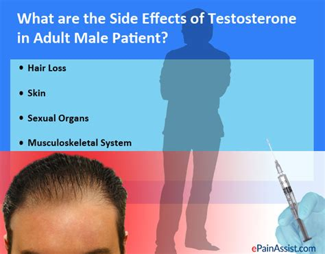 male pattern hair loss testosterone testosterone for hypogonadism side effects female