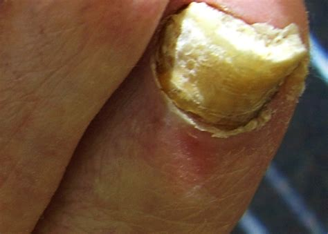 Pictures Of Toenails thick toenails causes treatment pictures trimming