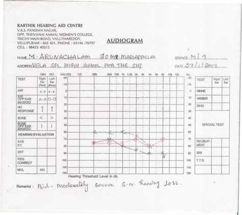 blank audiogram template download image collections