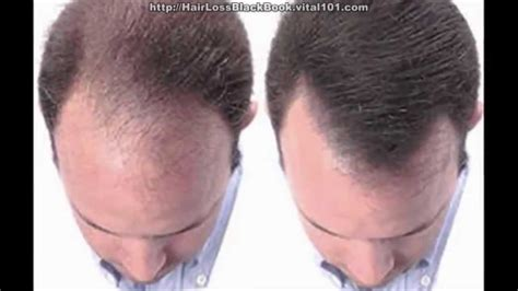 pressure points hair growth how to prevent hair loss cure baldness naturally youtube