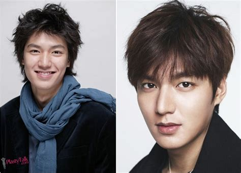 lee seung gi jaw surgery plastic surgery helped lee min ho become the brightest