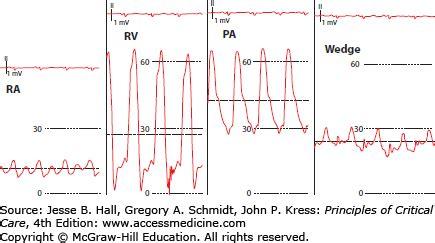 big swings in blood pressure interpretation of hemodynamic waveforms anesthesia key