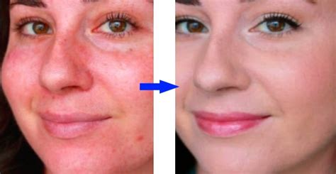 best medicine for rosacea top 13 exercises to strengthen your back and reduce b