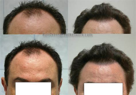 hair transplant pricelist in thailand hair graft cost in tailand hairstylegalleries com