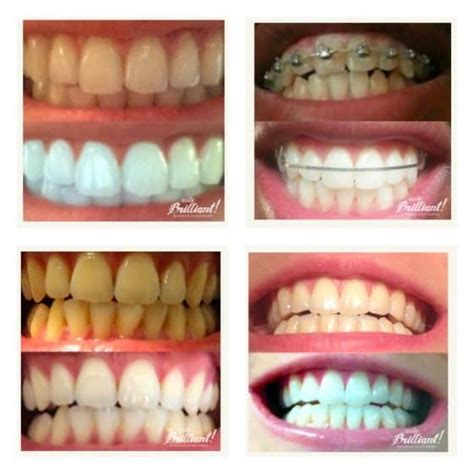 win  smilebrilliant teeth whitening kit