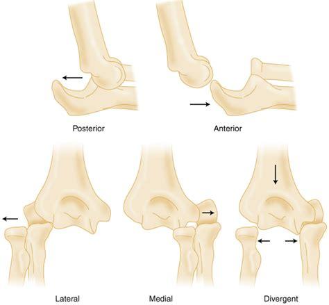 Gallery Anterior Elbow Dislocation