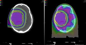 Scca Proton Therapy Brain And Central Nervous System Cancer Treatment Scca