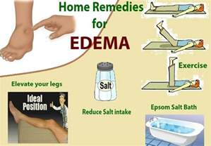 leg home remedies almawi ltd the holistic clinic our foot health