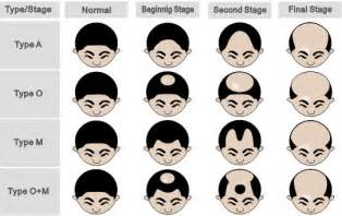 bandage hair shaped pattern baldness male pattern baldness the health council