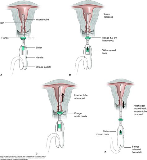 mirena diagram mirena iud diagram 28 images mirena iud images image