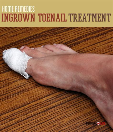 all comments on how to remove an ingrown hair youtube ingrown toenail treatment home remedies survival life