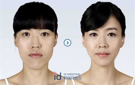 surgery cost chin reduction surgery cost hairstyle 2013