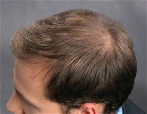 richtige anwendung bei kurzen duennen haaren flache frisur