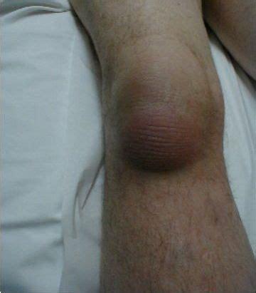 infiammazione gomito interno borsite ginocchio fisiomedica informa