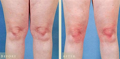 knee lift surgery before and after patient cc cps