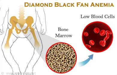 Iron Deficiency Anemia Symptoms Adults Black