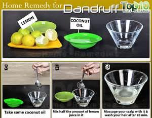 dandruff home remedy home remedies for dandruff top 10 home remedies