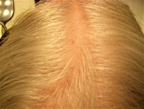 hairstyles for thin hair on scalp what to do about thinning hair time goes by