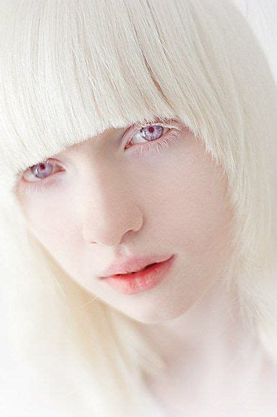 what color are albinos 17 best images about albinismo on albinism