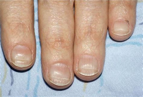 beaus lines how to recognize a beau line fingernail what are beau s lines health nails magazine