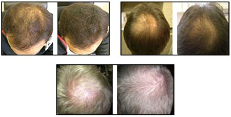 natural hair thin crown hair loss treatment for men and women natural hair loss