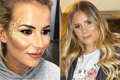 has nose has towie s kousoulou had a nose daily mail