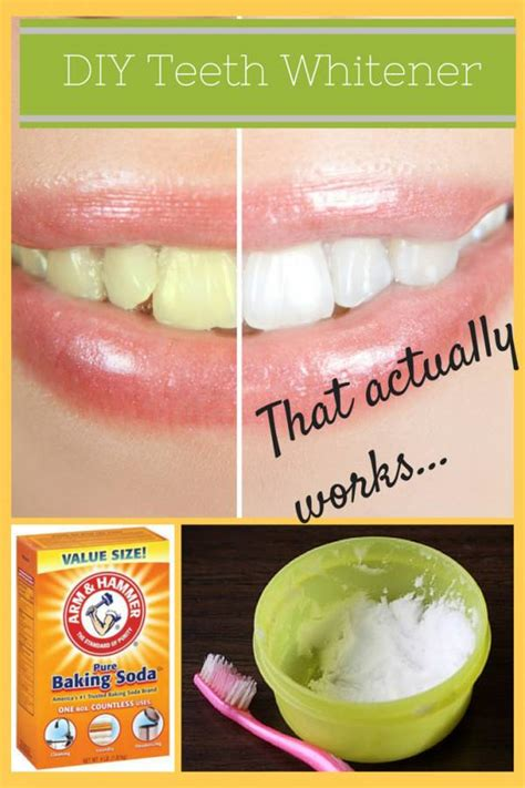 easy at home teeth whitening for any budget teeth