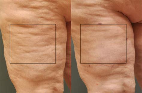home cellulite laser cellulaze a new laser cellulite technology plastic surgery