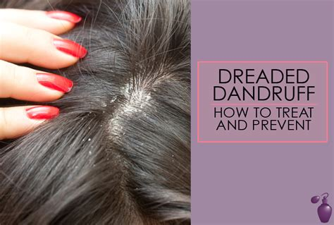 Do Hair Dryers Cause Dandruff dreaded dandruff how to treat and prevent eau talk